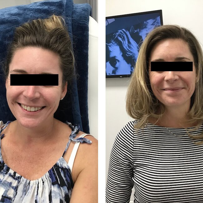 Bodyology Facial Infusion Before and After