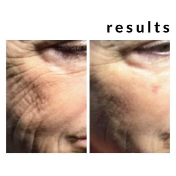 Image of before and after threads treatment