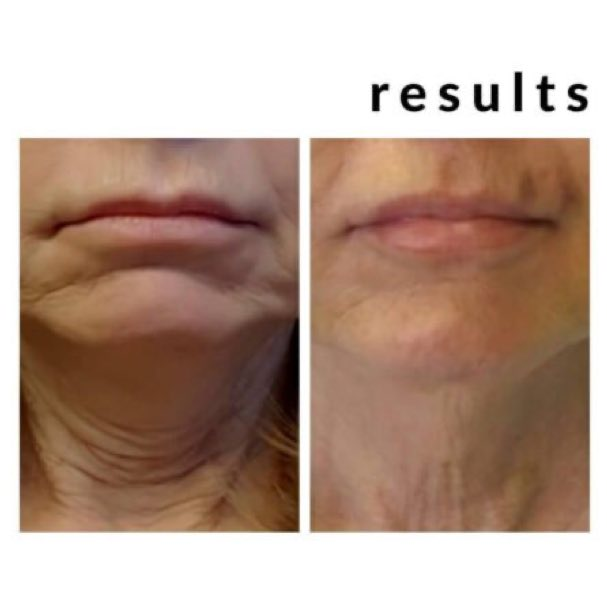 Image of a before and after results of thread treatment